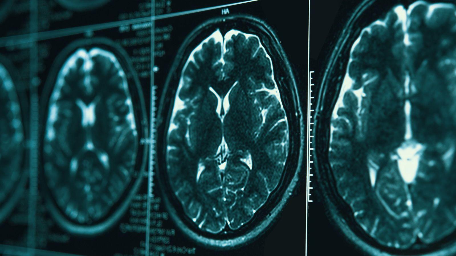 A series of MRI scans of a brain.